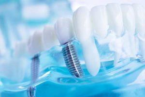 a model of dental implants